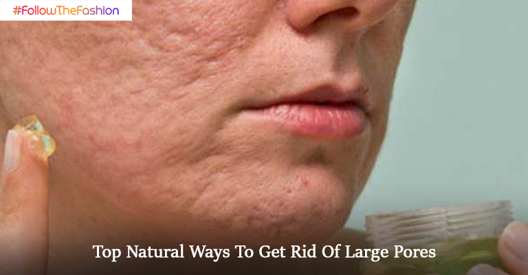 Natural Ways To Get Rid Of Large Pores